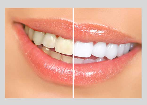 Tooth whitening - Orocare