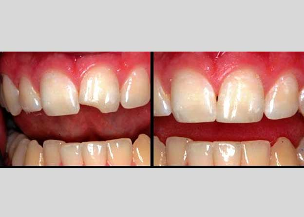 Esthetic dentistry (Bonding) - Orocare